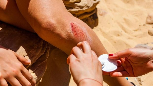Helping disinfecting the big bleeding scratch injury on the leg during the hiking tour in the desert