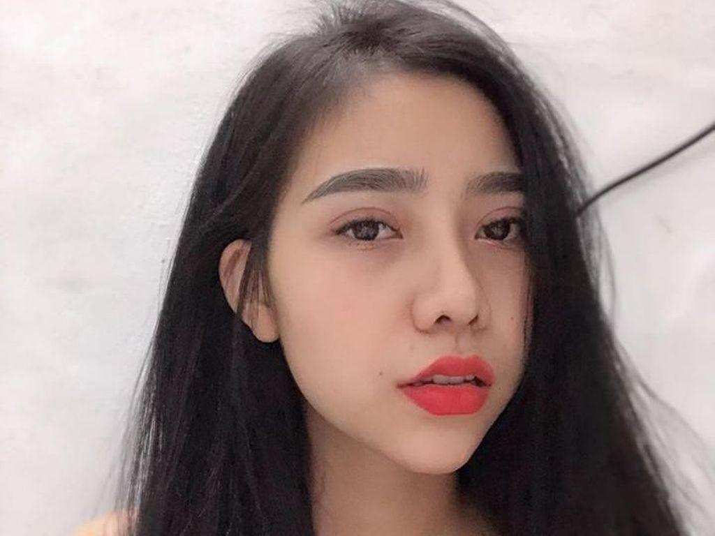 Potret Wanita Operasi Plastik Jadi Cantik Sampai Tak Dikenali Keluarga