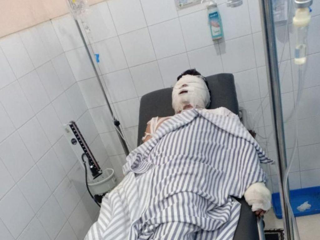 Alami Luka Parah, Korban Rampok-Bakar di Karawang Dirujuk ke RSHS Bandung