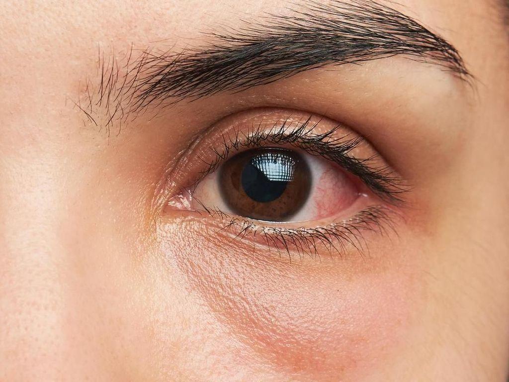 5 Obat Sakit Mata Alami Serta Penyebabnya