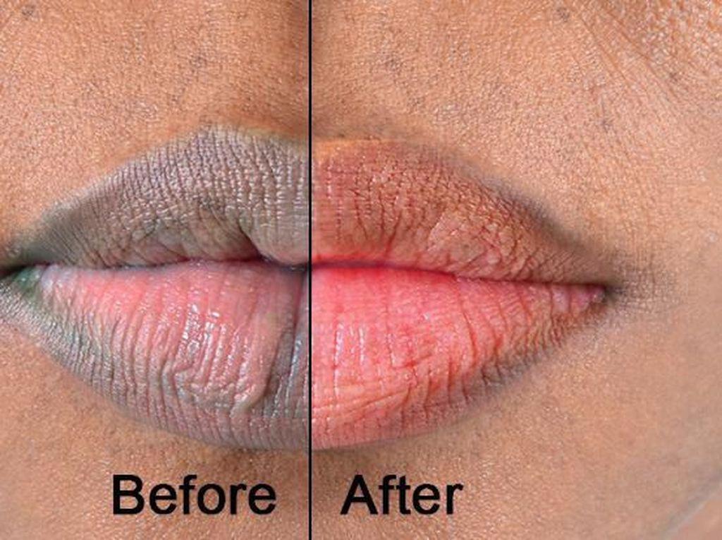 Scrub Alami dari 5 Makanan Ini Bisa Membuat Bibir Merah Natural
