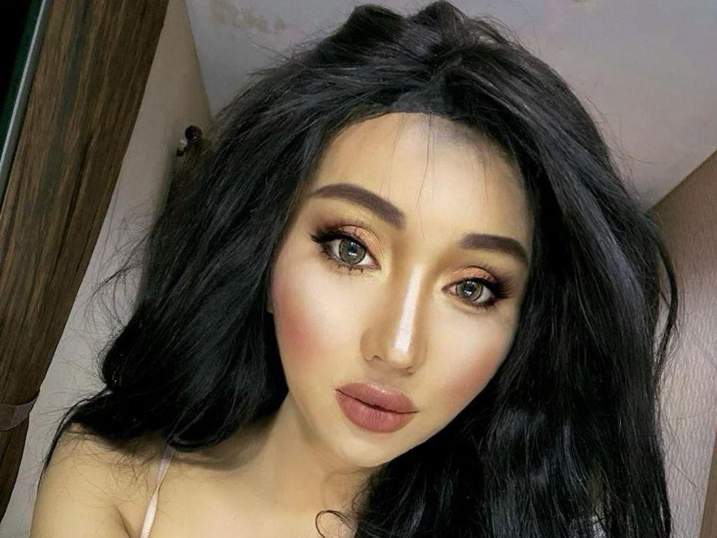 Filler, Lihat Before After Bibir Lucinta Luna yang Bengkak Bagai Kena Tawon