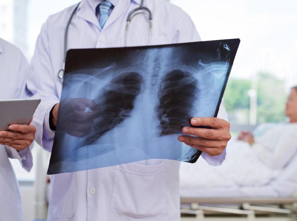 Apa Itu Pneumonia? Begini Penjelasannya