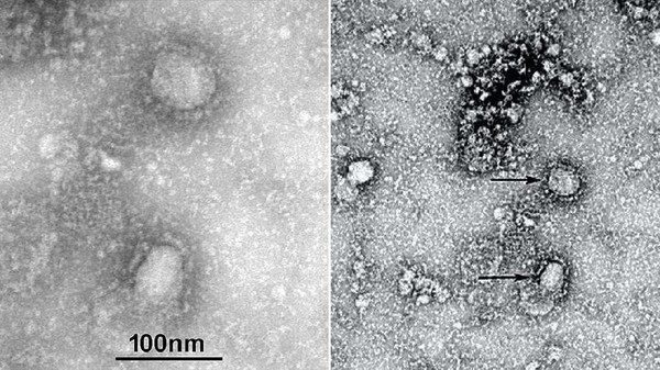 Potret virus corona baru, 2019-nCoV.