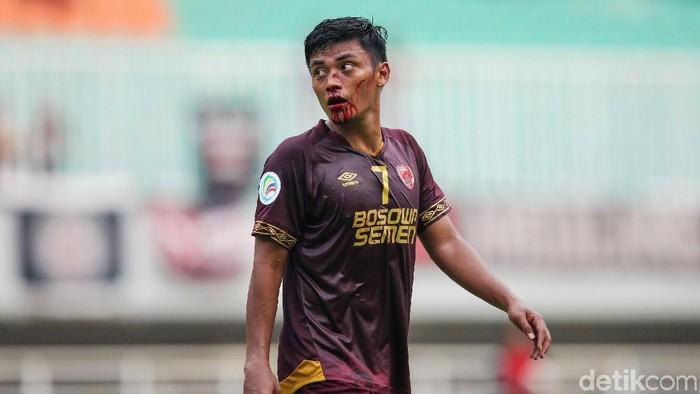 Usai mencetak gol, Irsyad Maulana terkapar setelah berbenturan dengan pemain Lalenok United. Hasilnya, Irsyad mengalami patah hidung dan dibawa ambulans.