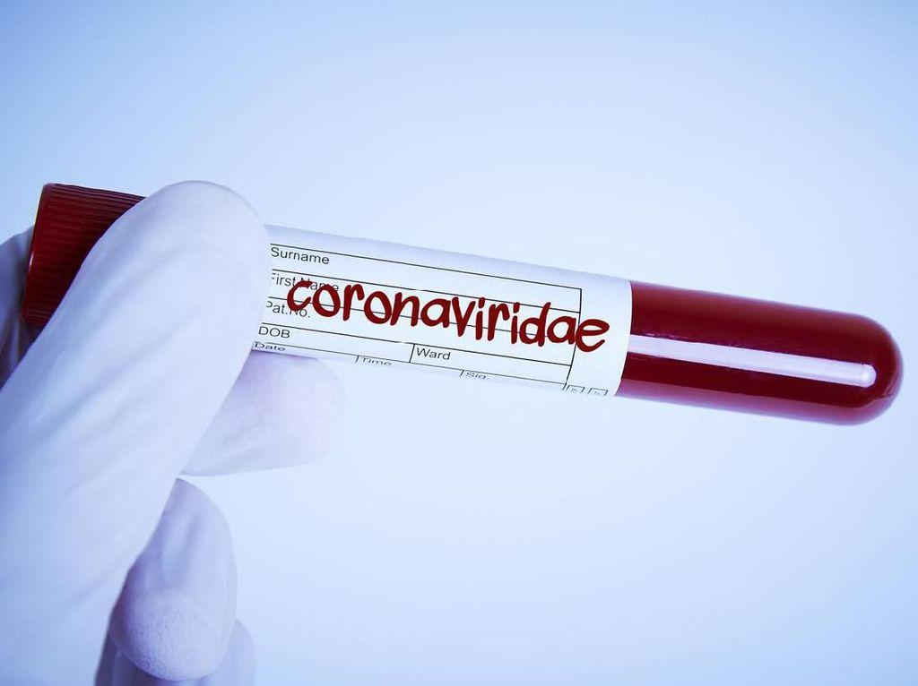 Banyak yang Meninggal, Bagaimana Pasien Virus Corona di China Bisa Sembuh?
