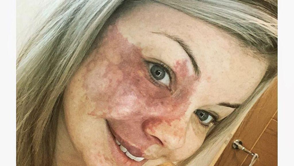 Potret Wanita dengan Tanda Lahir di Wajah, Kini PD Tampil Tanpa Makeup