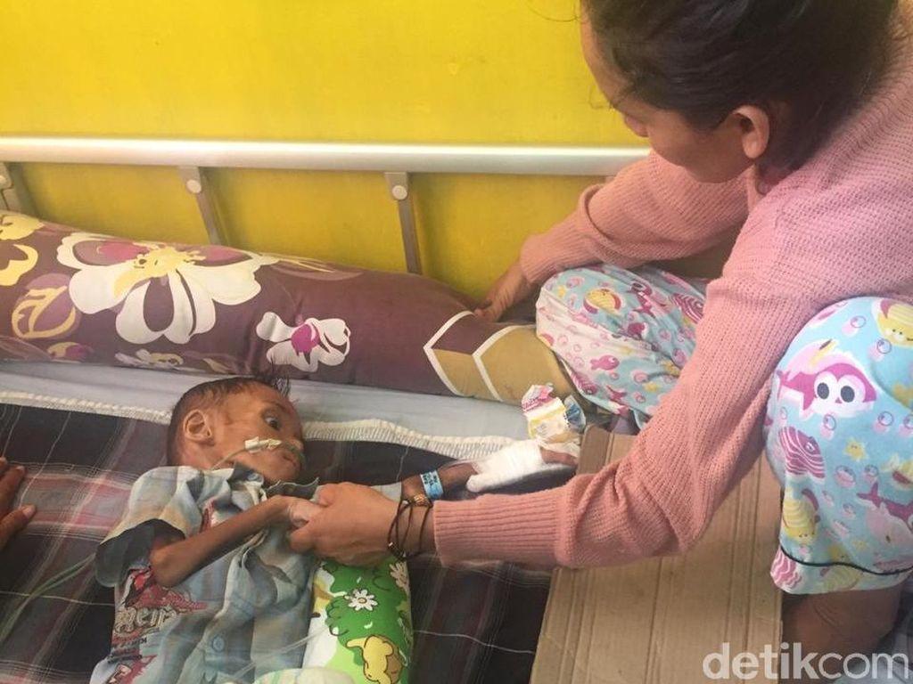 Bocah 3 Tahun Asal Buton Selatan Mengidap Gizi Buruk