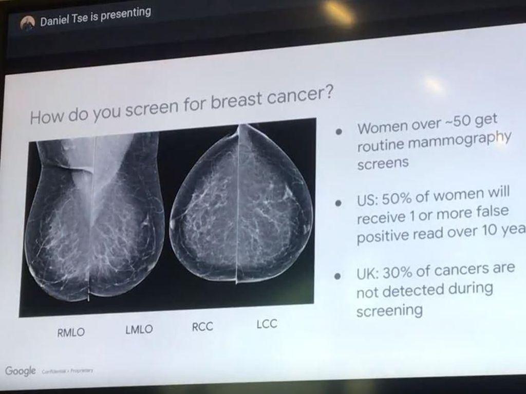 Teknologi AI Bantu Pemeriksaan Kanker Payudara