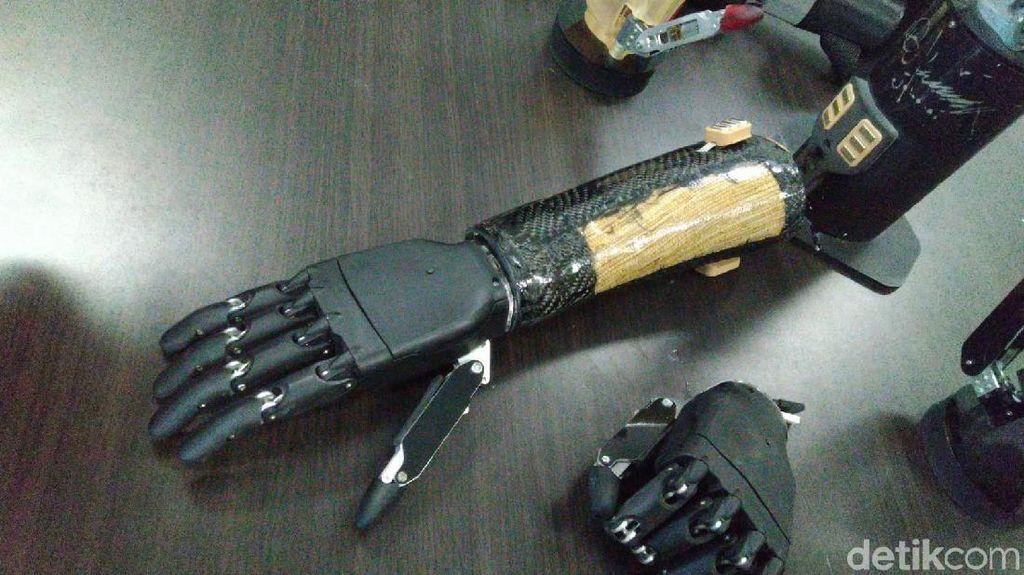 Tangan Bionik Canggih Buatan Undip Semarang