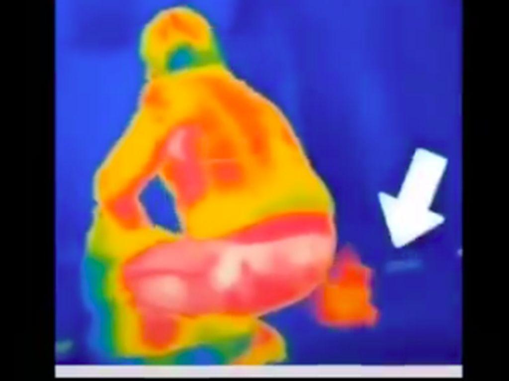 Haruskah Menahan Kentut Agar Tak Ketahuan Saat Lewati Thermal Scanner?