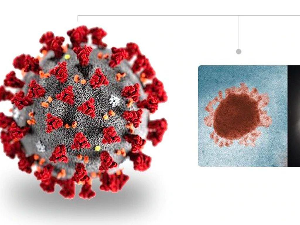RSMH Palembang Isolasi Satu Pasien Diduga Menderita Virus Corona
