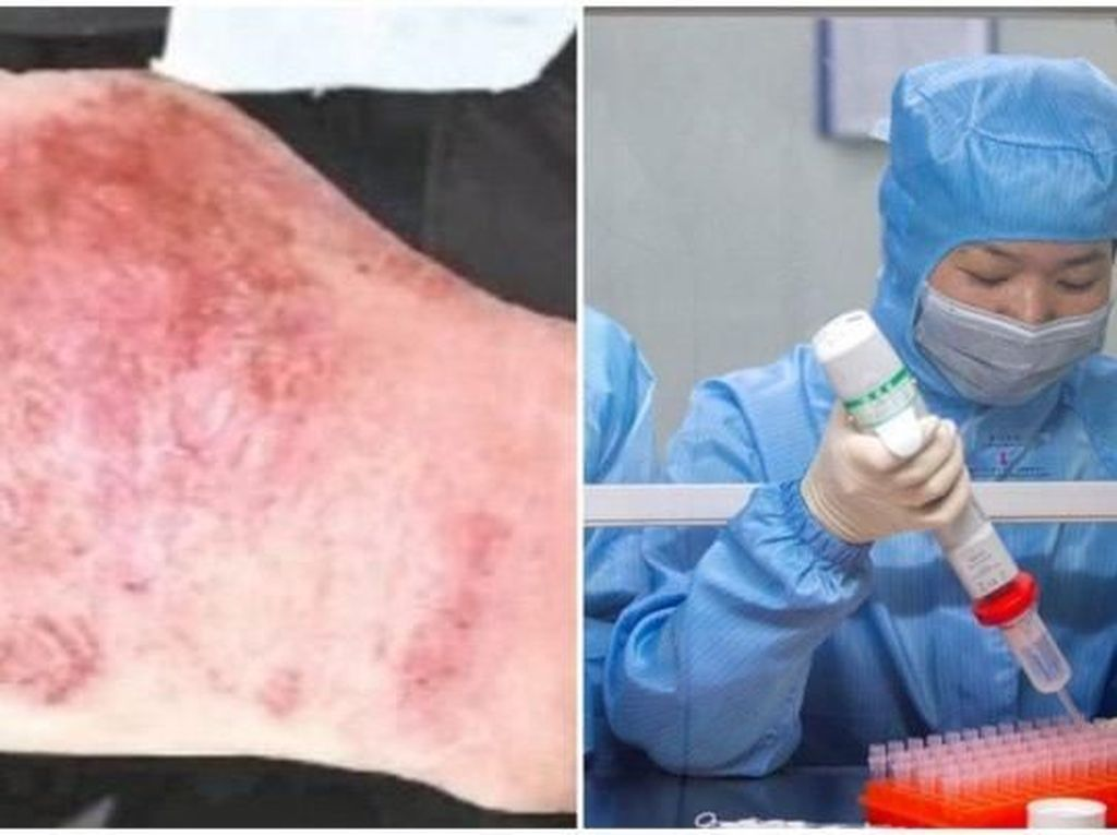 12 Jam Teliti Virus Corona, Tangan Dokter Ini Sampai Bengkak