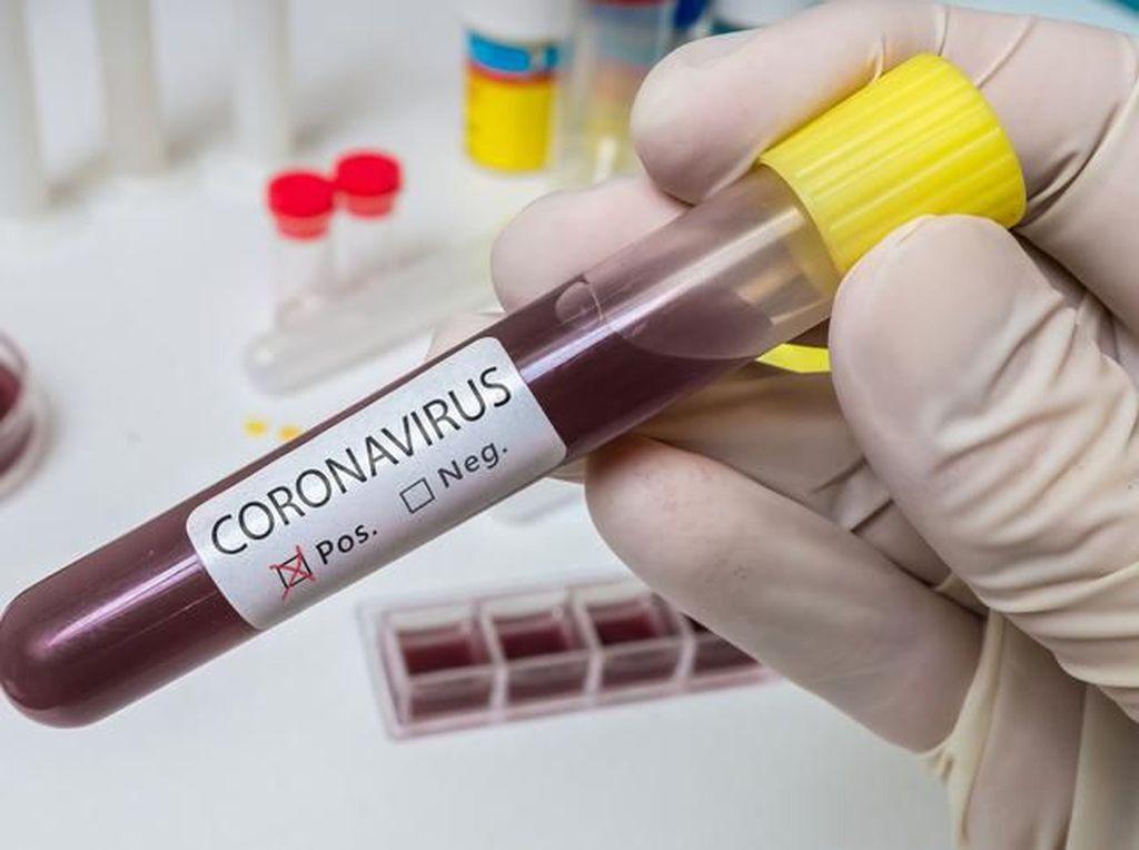 Satu Keluarga Terinfeksi Virus Corona Usai Makan Hot Pot Bareng