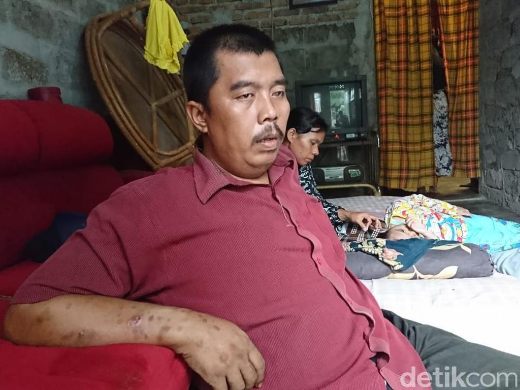 Pria yang Nekat Mau Jual Ginjal Dibantu Gubsu Edy, tapi Kesal Dimarahi