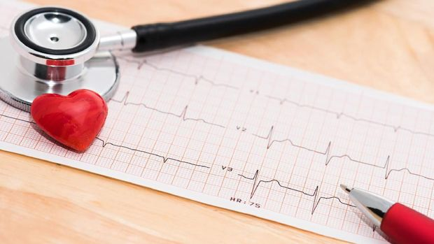 An ECG heart monitor printout with a stethoscope