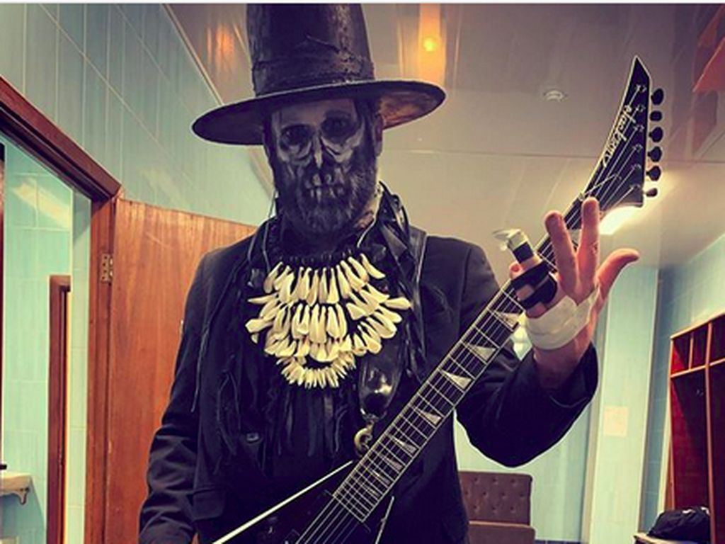 Gokil! Tangan Patah, Gitaris Limp Bizkit Sangar Ngeband dengan 3 Jari