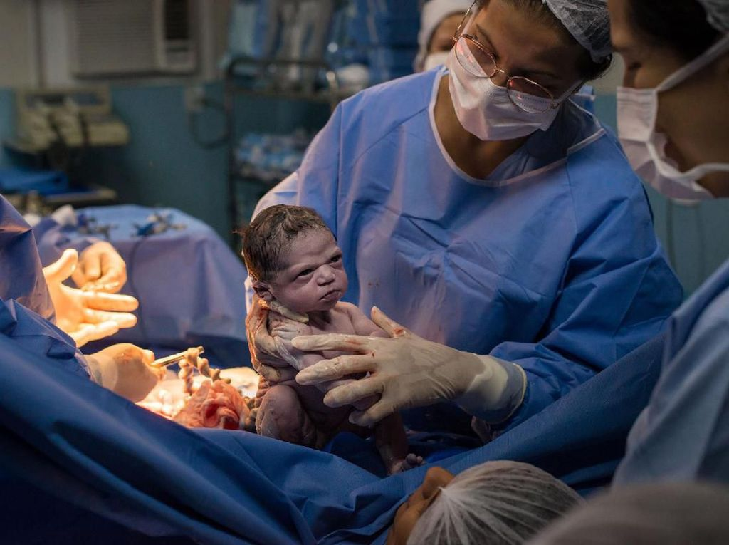 Viral Foto Bayi Langsung Pasang Muka Cemberut Saat Baru Dilahirkan