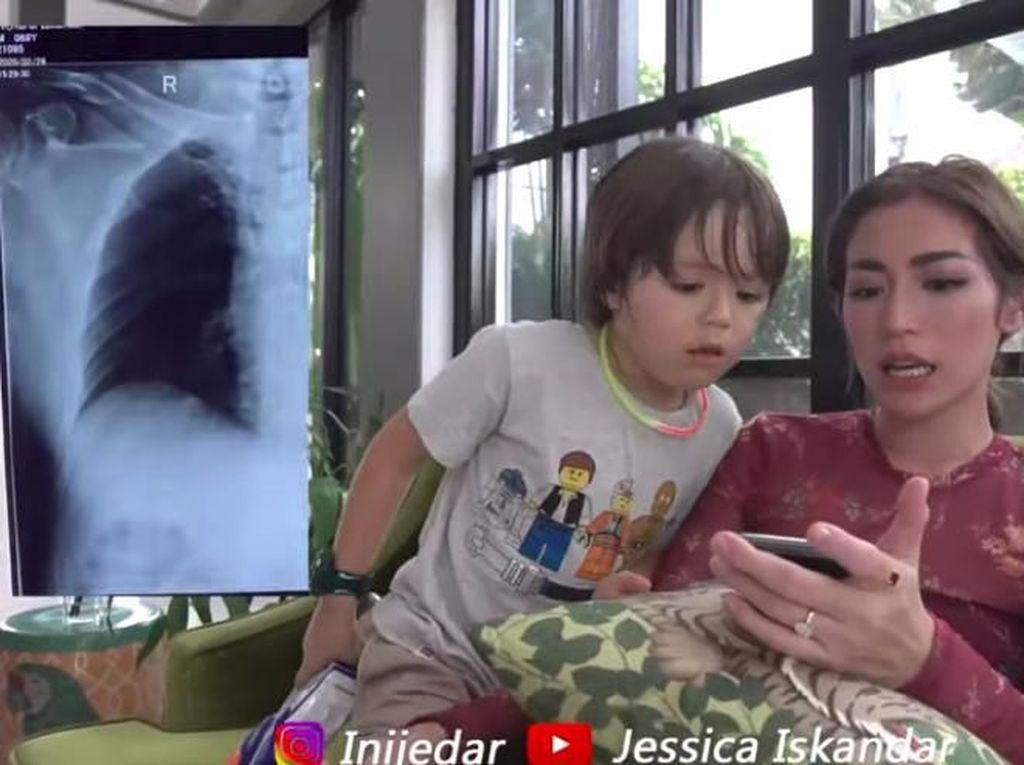 Jadi Korban Tabrak Lari, 5 Tulang Rusuk Ayah Jessica Iskandar Patah