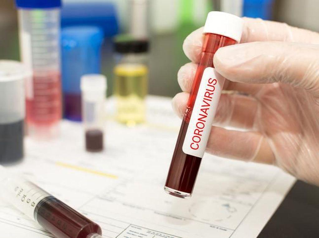 Obat Virus Corona Belum Ada, Ini Tips Agar Kamu Terhindar COVID-19
