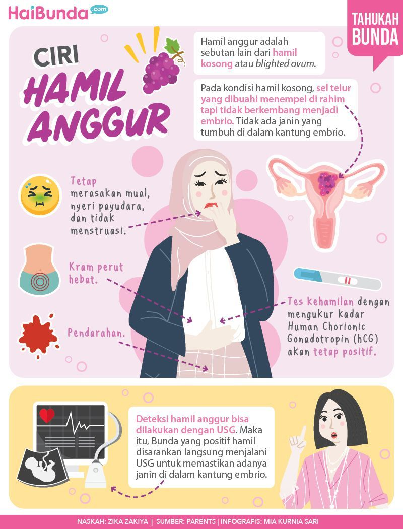 Infografis Ciri Hamil Anggur