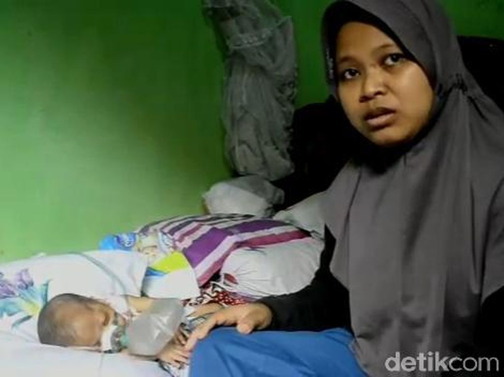 Bayi 6 Bulan di Batang Ini Bergantung Tabung Oksigen untuk Bernapas