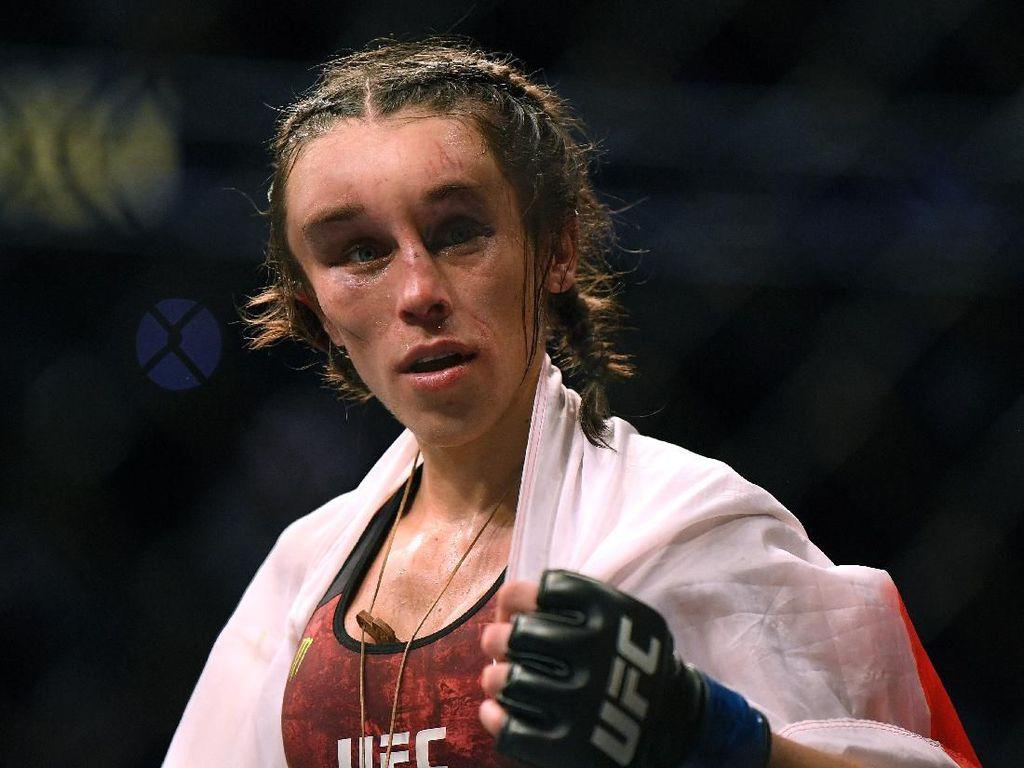 Wanita yang Kepalanya Pernah Penyok Usai Tanding UFC, Begini Kondisinya Kini