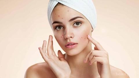 Komedo Bisa Menjadi Jerawat Hingga Efek Samping Pore Strip Ini Fakta Seputar Komedo Yang Perlu Kamu Tahu