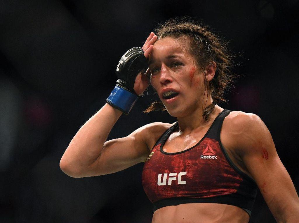 Pertandingan Brutal, Kepala Petarung UFC Wanita Ini Sampai Penyok