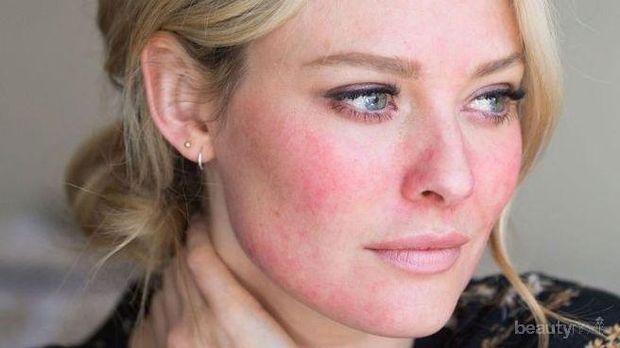Yuk Pakai Skincare Khusus untuk Kulit Kemerahan Berikut, Ladies!