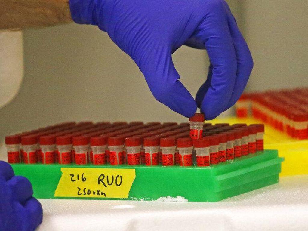 Ahli Sebut CT Scan Lebih Akurat Deteksi Virus Corona Dibanding Tes Swab