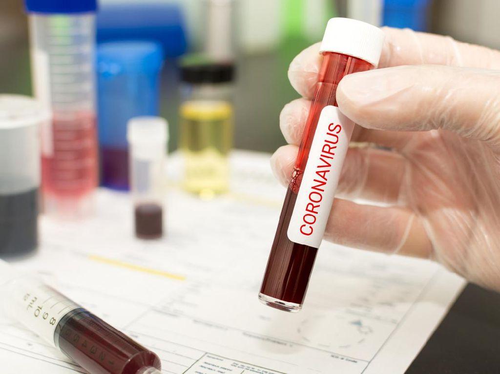 Pasien Positif Virus Corona di Balikpapan Kaltim Bertambah 3 Orang