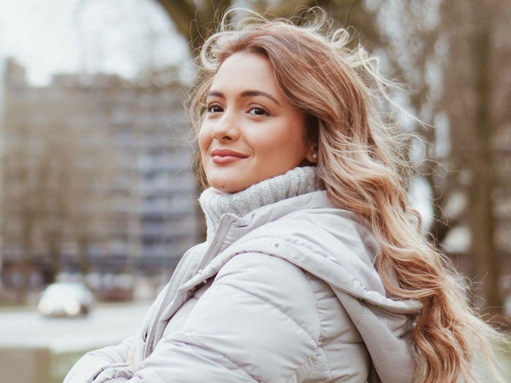 Terpesona Cantiknya Amanda Rawles yang Hijrah ke Australia Demi Kuliah