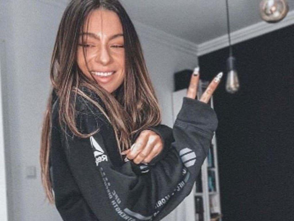 9 Foto Influencer yang Ketahuan Gagal Edit, Mana yang Paling Bikin Shock?