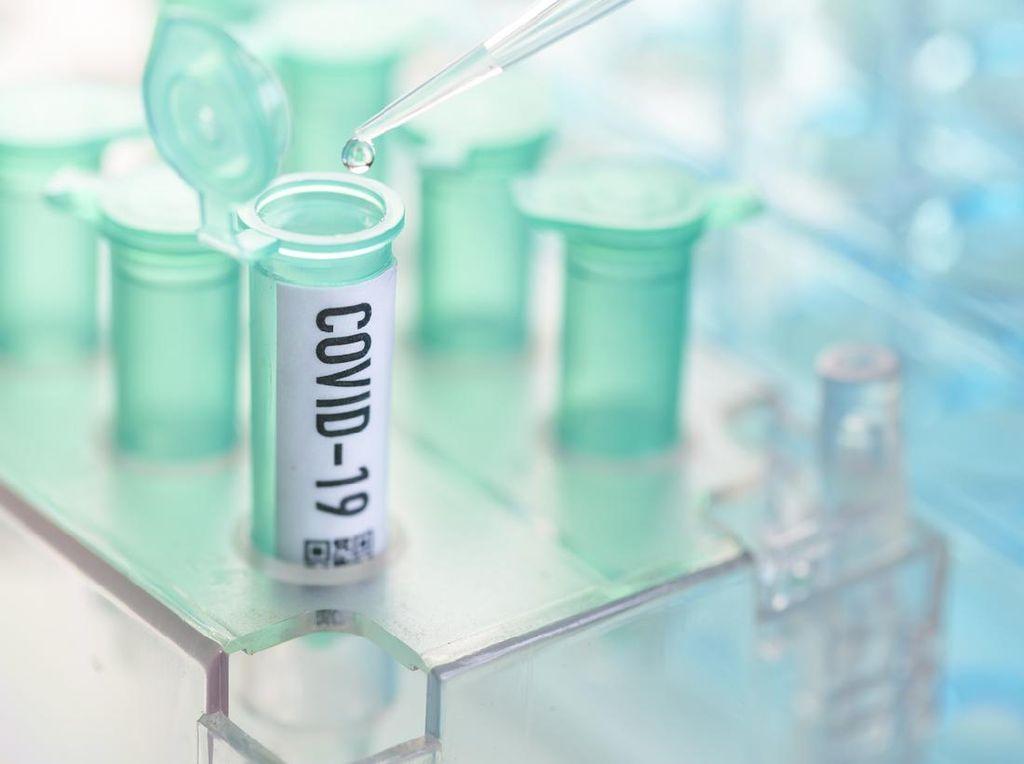 6 Peserta UTBK UNM Reaktif Corona, Diberi Kesempatan Ikut Ujian Susulan