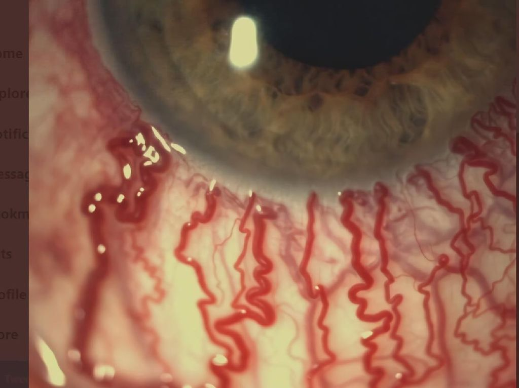 Viral Penampakan dari Dekat Mata Memerah Akibat Menangis, Ini Kata Dokter