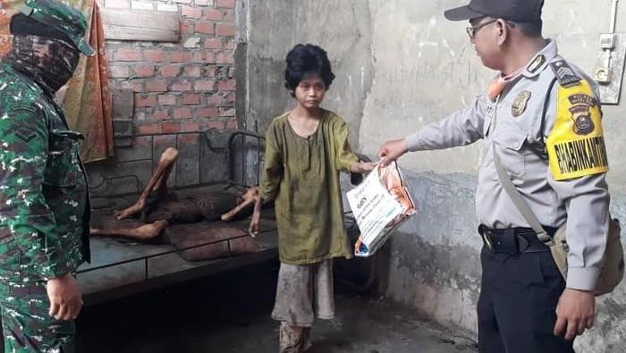 Kakak Adik Kelaparan di Muara Enim Berkebutuhan Khusus, Tak Ada yang Ngurus