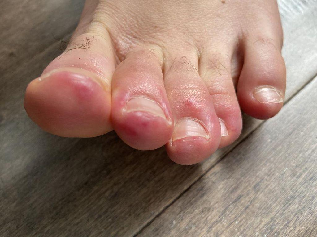 Fenomena Covid Toes, Muncul Ruam pada Jari Kaki Pasien Positif Corona