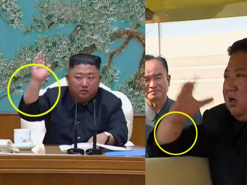 Tanda Misterius di Lengan Kim Jong Un, Kemungkinan Bekas Ambil Darah?