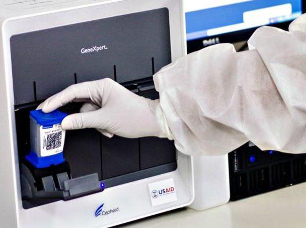 RI Kerahkan Alat Tes TBC untuk Tes Corona, 45 Menit Keluar Hasilnya