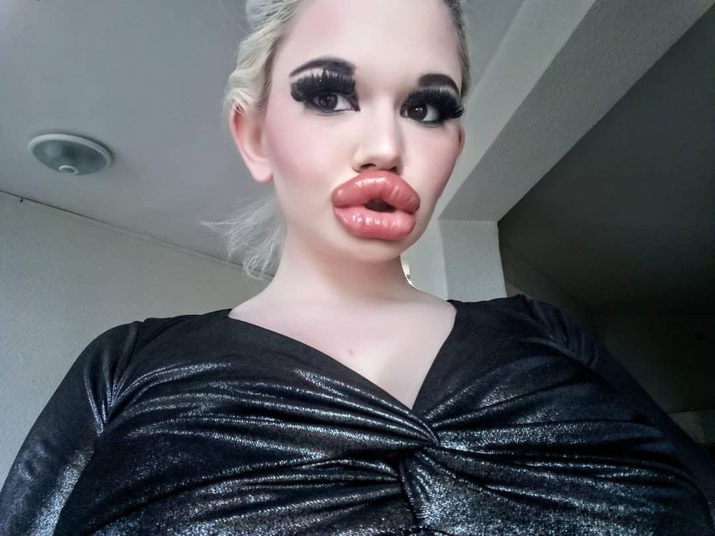 Foto Before-After Wanita Obsesi Punya Bibir Terbesar di Dunia, Dulu Lebih Cantik