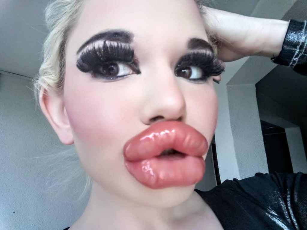 Wanita Ini Obsesi Punya Bibir Terbesar di Dunia, Penampilannya Menyeramkan