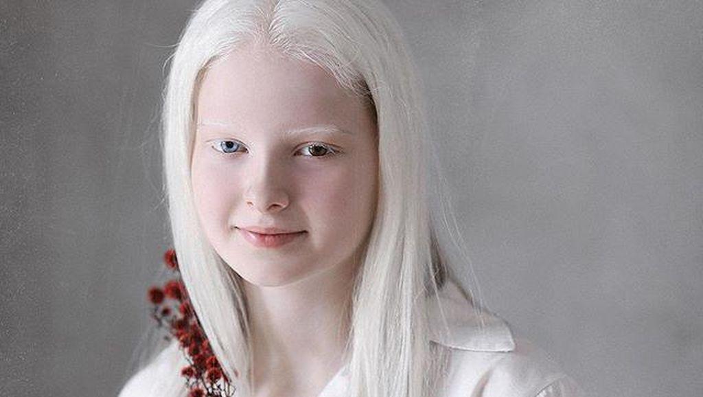 Potret Gadis Desa yang Viral karena Kecantikan Unik Wajahnya