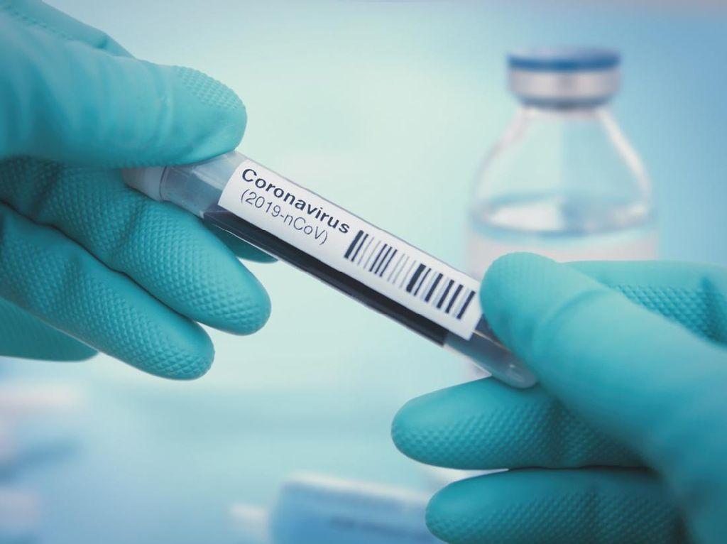 Kabar Baik! Studi Terbaru Sebut Antibodi COVID-19 Bertahan 9 Bulan