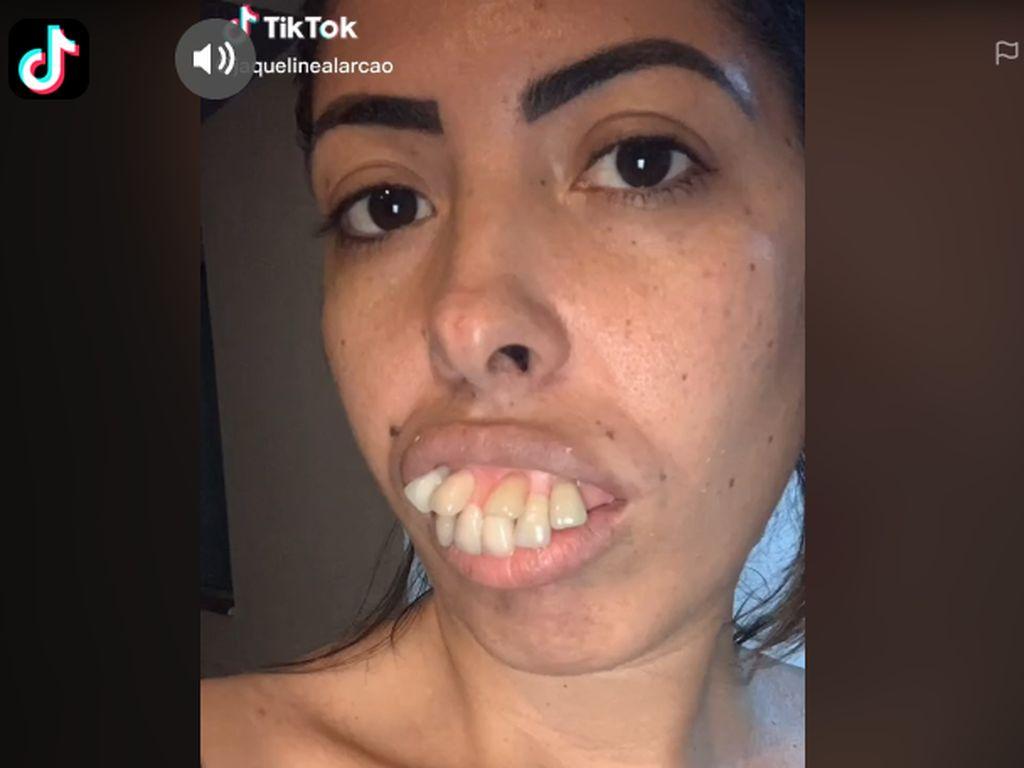 Foto: Transformasi Wanita Bergigi Tonggos Ini Viral, Netizen Ternyata Di-prank