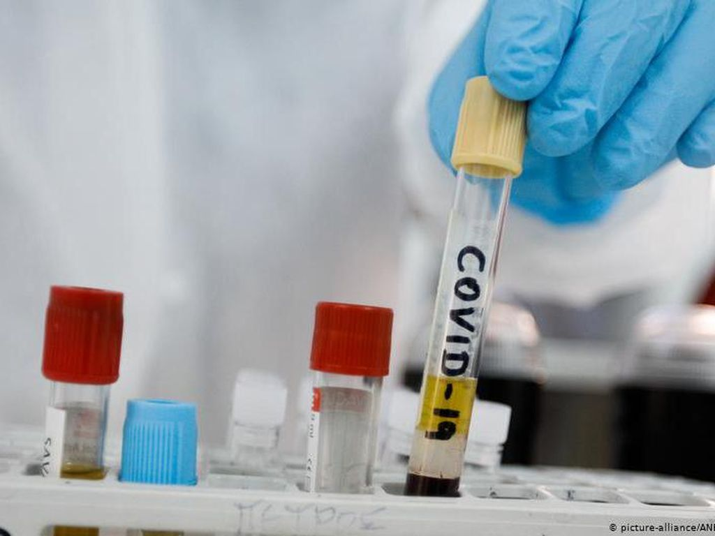 Vaksin Corona Buatan Oxford Diklaim Bikin Kebal Setahun