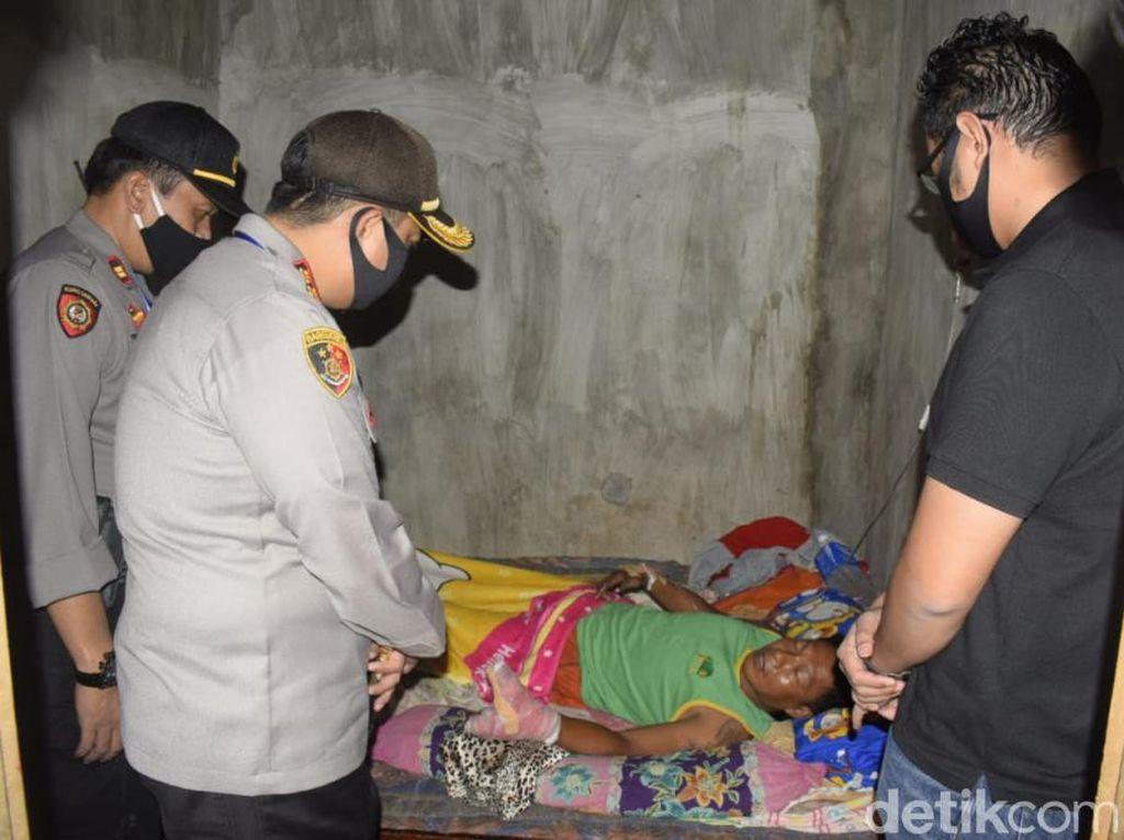Kembang Api Meledak, Jemari Pria di Pasuruan Hancur