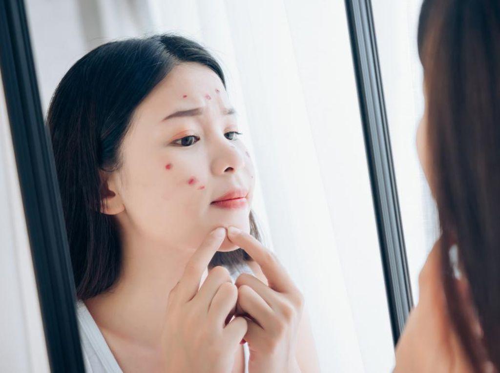 10 Obat Jerawat yang Bisa Bantu Bikin Muka Kinclong