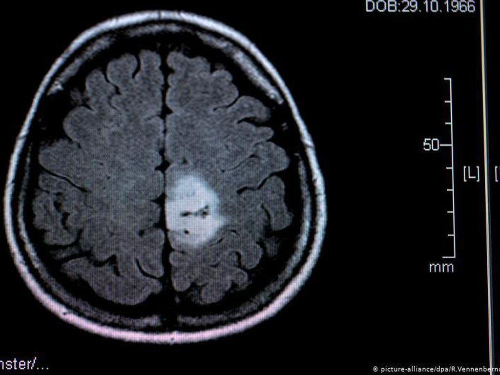 Tumor Otak pada Anak Bukan Berarti Vonis Mati