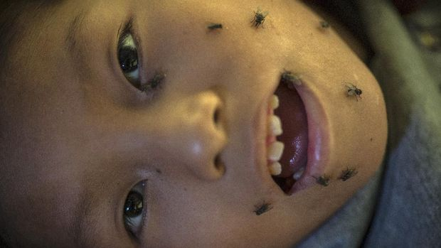 11-year-old David Leandro Del Aguila, unable to swat away the flies on his face because he is quadriplegic, eyes the camera while lying on a bed in his home in the Nueva Esperanza neighborhood of Lima, Peru, Tuesday, June 9, 2020. Quarantines and shutdowns meant to slow the spread of the new coronavirus have left millions of poor people with no way to feed their families. (AP Photo/Rodrigo Abd)